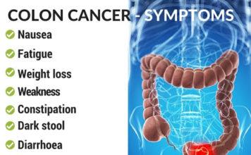 Symptoms of Colon Cancer