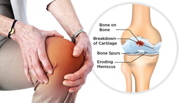Osteoarthritis Treatment, Causes, Symptoms & Diagnosis