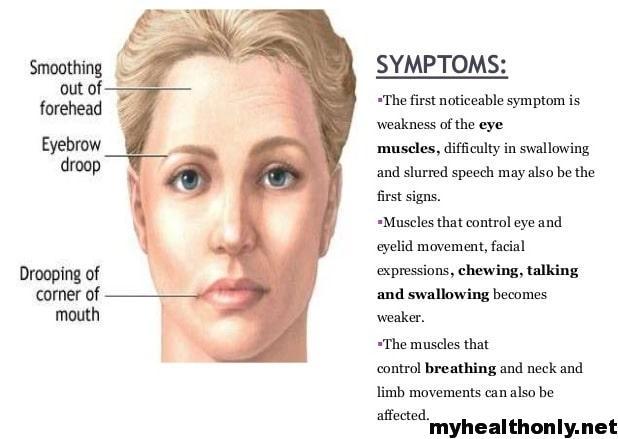 Symptoms of Myasthenia Gravis