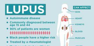 Lupus Symptoms, Causes, Diagnosis, Treatment & Complications
