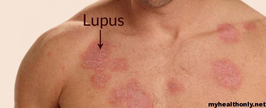Symptoms of Lupus