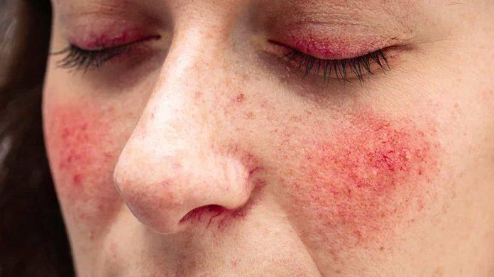 Face redness (Rosacea)