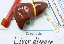 Home Remedy for Fatty Liver